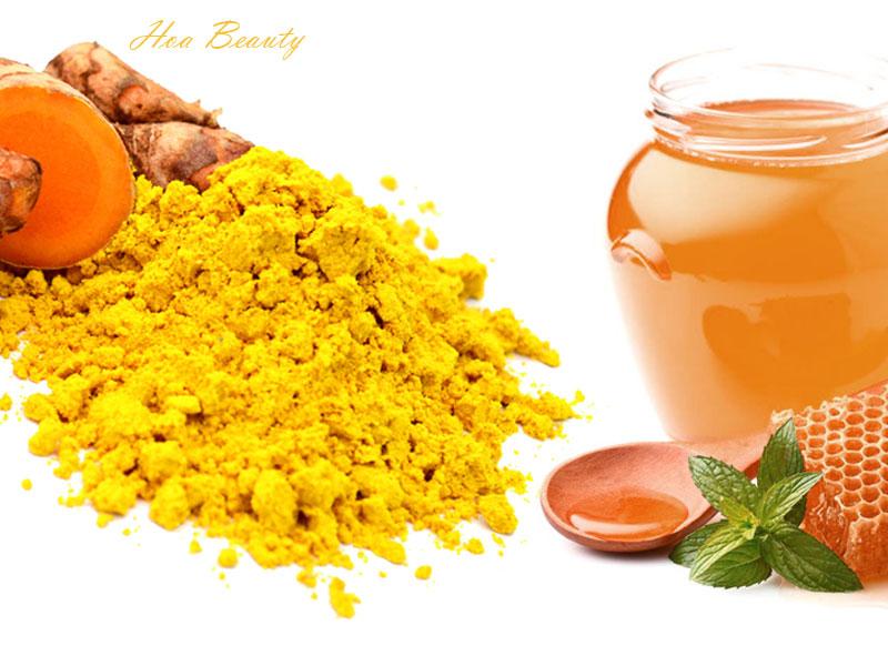 Cách trị mụn bằng bột nghệ và mật ong