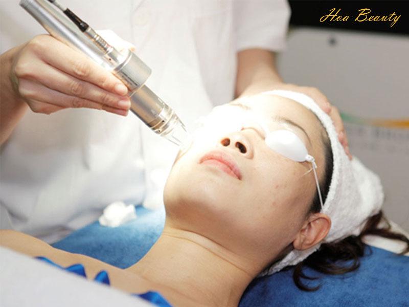 Cách trị sẹo bằng phương pháp laser hiện đại