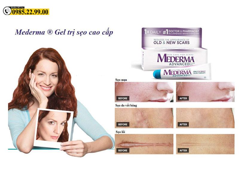 Kem trị sẹo Mederma có khả năng điều trị đến 90% với sẹo mới, sẹo diện tích nhỏ