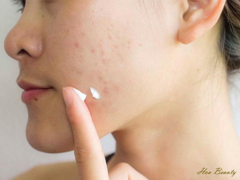 Kem trị sẹo Mederma lành tính nên rất ít trường hợp gặp phản ứng phụ