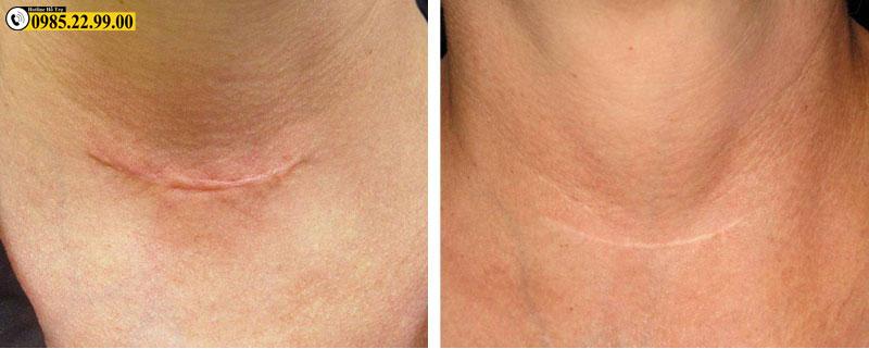 kem trị sẹo ticarlox điều trị hiệu quả sẹo lồi, sẹo thâm, sẹo bỏng