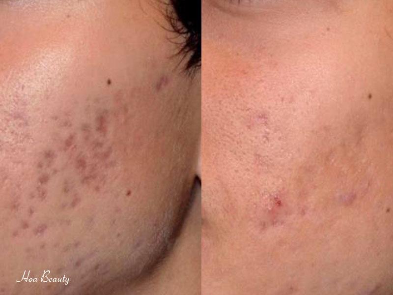 Trị sẹo thâm Acnes hiệu quả đến 90% chỉ sau 2 - 3 tuần