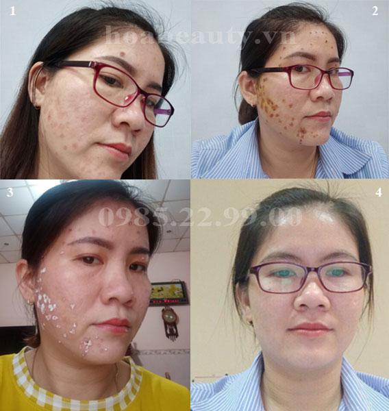 Phản hồi khách hàng trị sẹo đốt Laser bằng Scar Esthetique