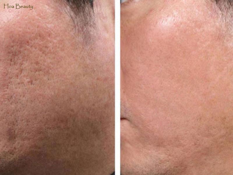 Kem trị sẹo Scar Esthetique đánh bay sẹo lõm lâu năm đến 65%