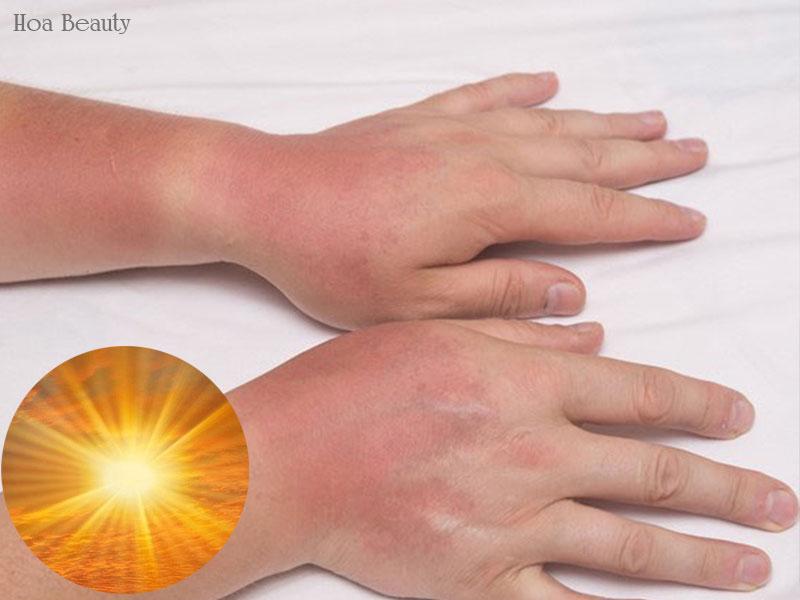 Da tay đen sạm do chịu tổn thương từ ánh nắng mặt trời