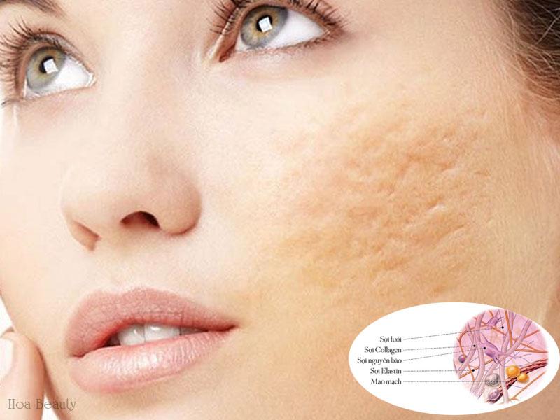 Làn da khi bị thiếu hụt Collagen thường gây sẹo lõm sau khi bị thương.