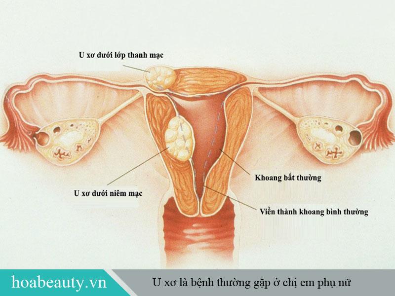 U xơ là bệnh thường gặp ở phụ nữ, trong đó có u xơ vú và u xơ tử cung