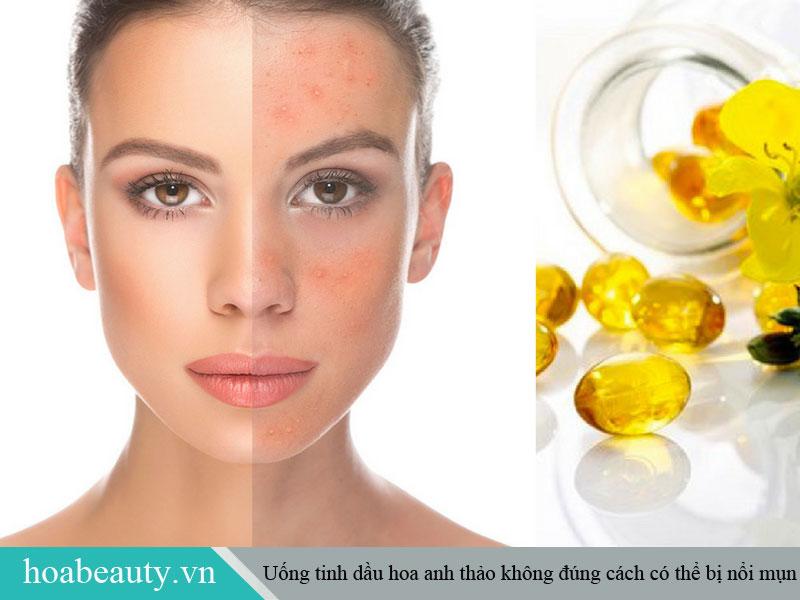 Uống tinh dầu hoa anh thảo có thể bị nổi mụn nếu bạn sử dụng không đúng cách.
