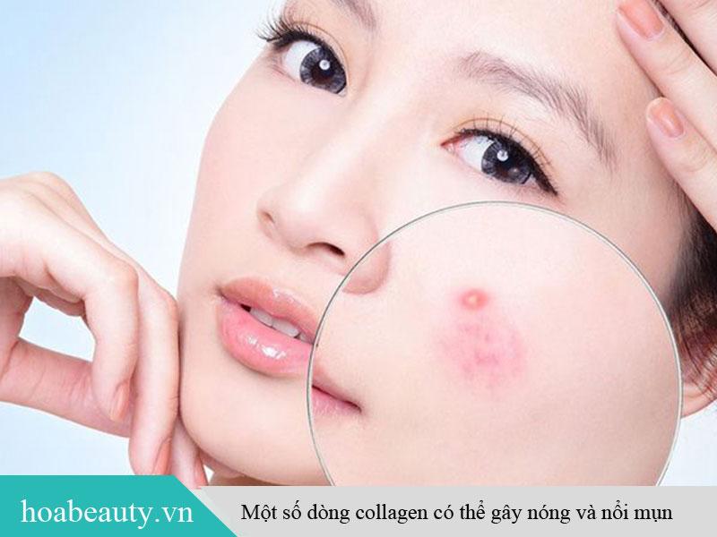 Một số tác dụng phụ của collagen