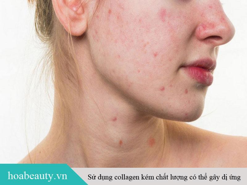 Kích ứng, mẫn cảm là tác dụng phụ thường gặp khi uống collagen không đúng cách